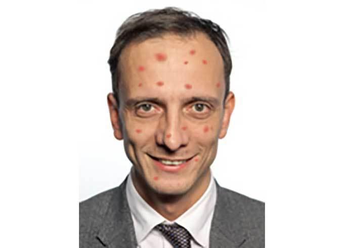 義大利反疫苗政客 自己出水痘需要送院