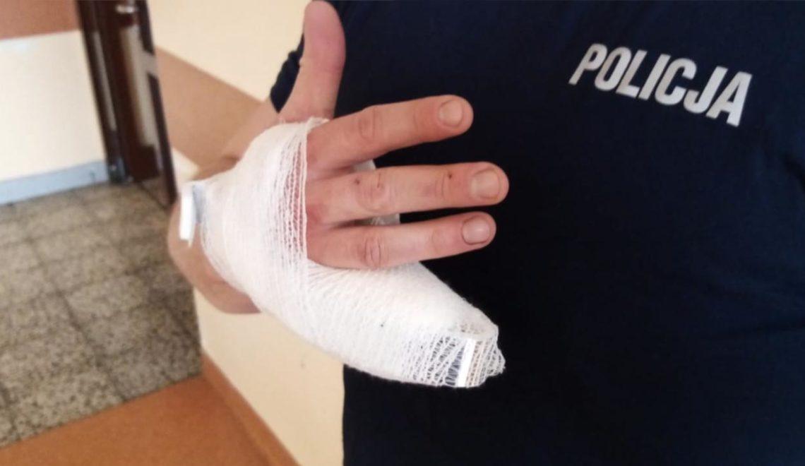 波蘭司機發癲咬警察手指
